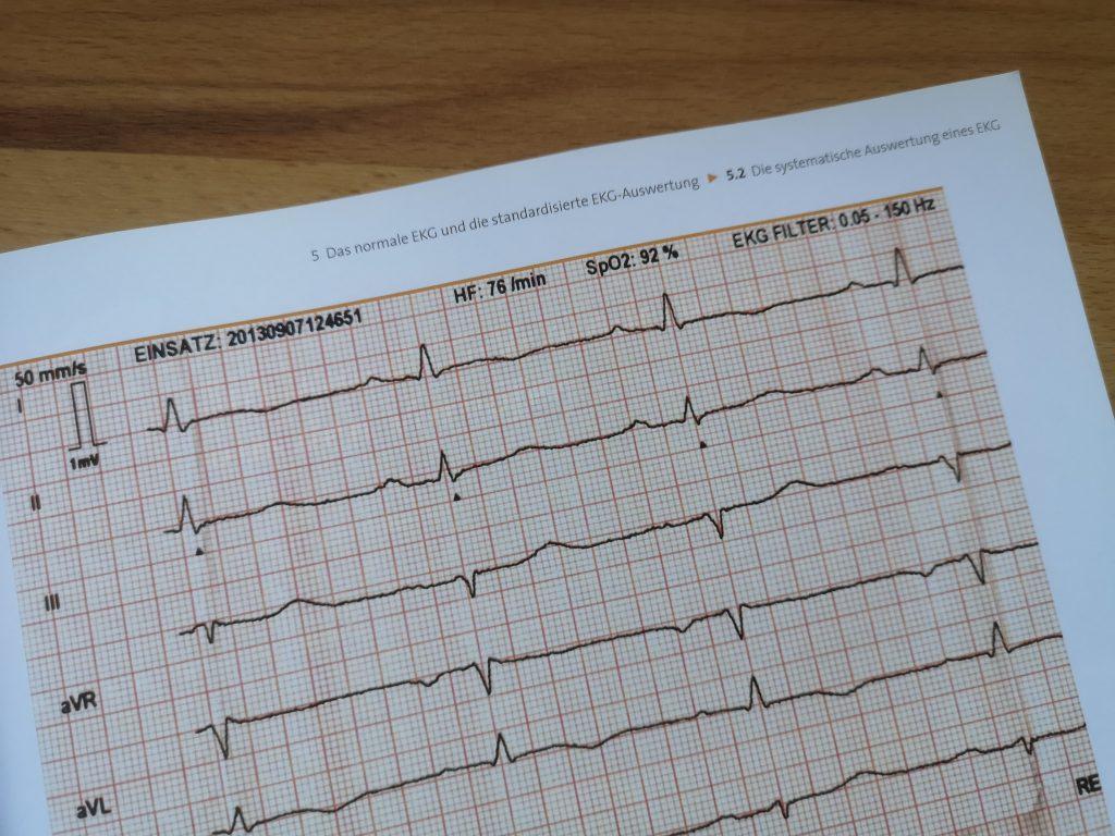 Beispiel EKG in EKG in der Notfallmedizin